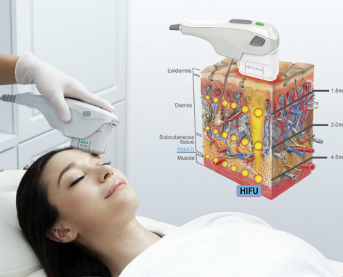 High Intensity Focused Ultrasound